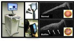 Nowhere to hide: New device sees bacteria behind the eardrum