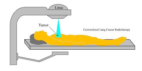 New radar better treats mobile tumors