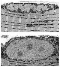 Researchers identify key culprit causing muscle atrophy
