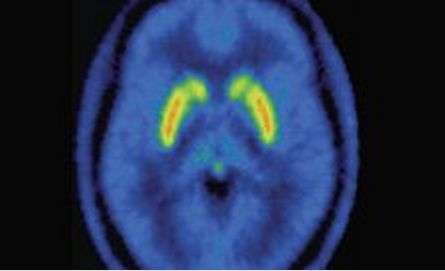 Research may explain why some people with schizophrenia do not respond to treatment