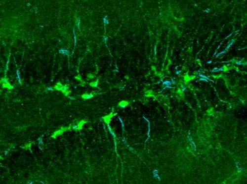 Lipid metabolism regulates the activity of adult neural stem cells
