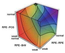 Physics puts new lens on major eye disease