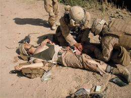 AP IMPACT: Surprising methods heal wounded troops