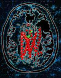 Scientists create molecular map to guide treatment of multiple sclerosis