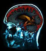New treatments may help restore speech lost to aphasia