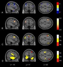 Brain region can signal early-stage Alzheimer's and other dementias
