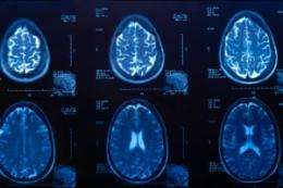 Cognitive impairment and heart disease subtly correlated