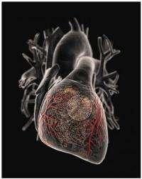 Delivery of gene-therapy for heart disease boosted 100-fold; now in 100-patient trial