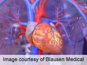Device data can ID heart failure patients at readmission risk