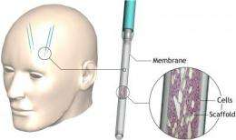 Device implanted in brain has therapeutic potential for Huntington's disease