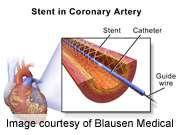 Dissolvable heart artery stents appear safe in study