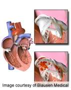 Early surgery ups outcomes in infective endocarditis