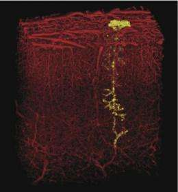 Even the smallest stroke can damage brain tissue and impair cognitive function
