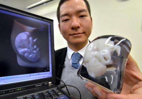 Expectant parents in Japan can now obtain a 3D model of the foetus