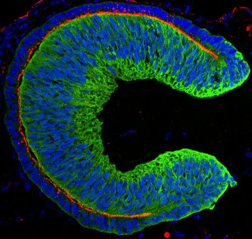 First mouse, now human, lab-grown eye tissue