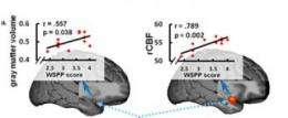 Friendly to a fault, yet tense: Personality traits traced in brain