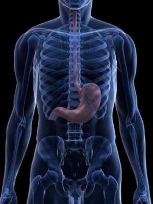 Gastric cancer: Tracking a mysterious killer