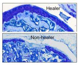Genes that promote cartilage healing protect against arthritis