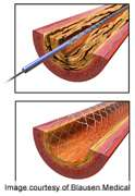 Good long-Term outcomes for drug-Eluting stents