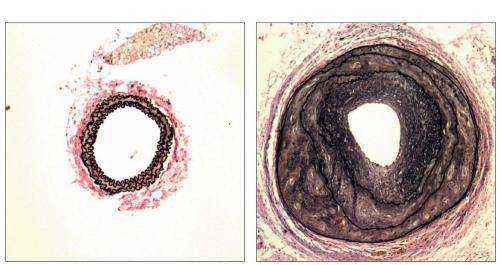 G proteins regulate remodelling of blood vessels
