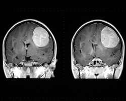 Improved image analysis for MRI