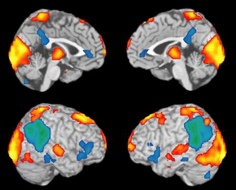 In epileptic seizures, researchers see the neurology of consciousness