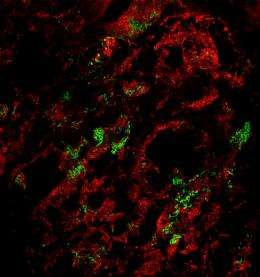 Lungs infected with plague bacteria also become playgrounds for other microbes