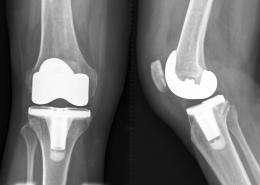 Nanodiamond coatings safe for implants: study