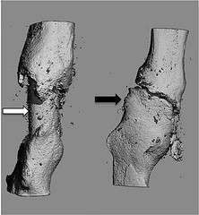 New method of resurfacing bone improves odds of successful grafts