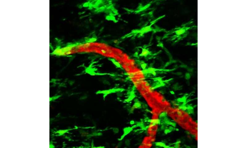 NIH-funded researchers show possible trigger for MS nerve damage