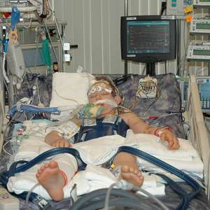 Pediatric program for brain injuries saves lives, reduces disabilities