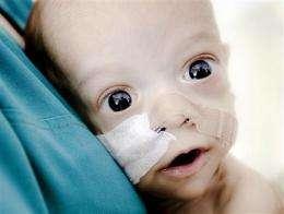 Romanian baby born with stunted intestines dies (AP)