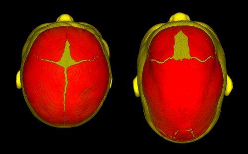Seattle Children's Research Institute helps identify causes of sagittal craniosynostosis