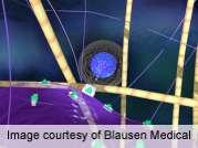 Sentinel node biopsy safe for vulvar squamous cell cancer