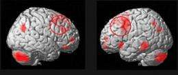 Shedding light on memory deficits in schizophrenic patients and healthy aged subjects