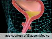 Sling offers lasting benefit for stress urinary incontinence