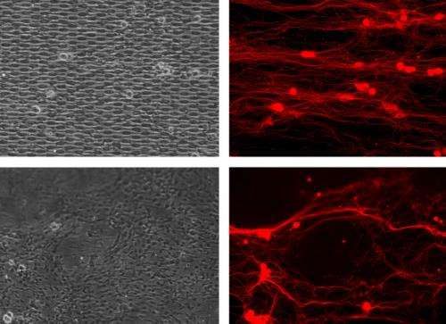 A tangle of talents untangles neurons