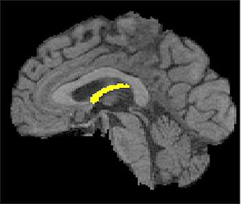Brain circuitry loss may be a very early sign of cognitive decline in healthy elderly people