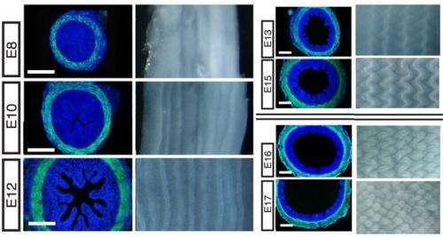 How the gut got its villi