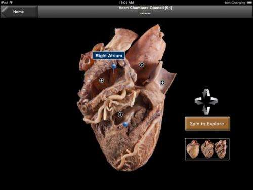 New app lets med students study real human heart on iPad