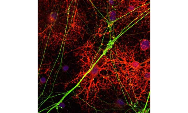 New strategy to treat multiple sclerosis shows promise in mice