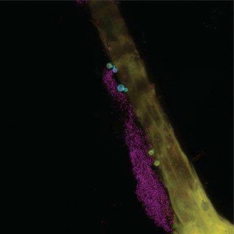 NIH researchers conduct first genomic survey of human skin fungal diversity