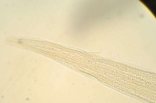 Parasitic worm genome uncovers potential drug targets