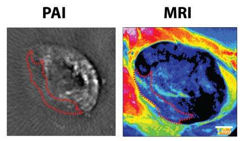 Photoacoustics spares healthy lymph nodes in patients with metastasized cancer