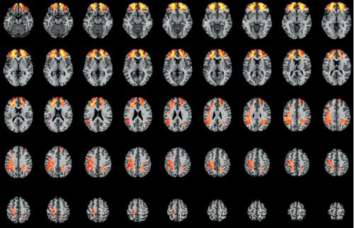 Researchers map brain areas vital to understanding language