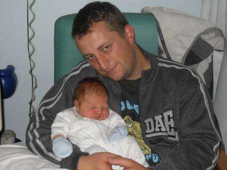 Study calls for better support for fathers of children with cleft lip or palate