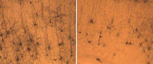 Sanford-Burnham researchers unravel molecular roots of Down syndrome