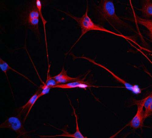 Study reveals genes that drive brain cancer