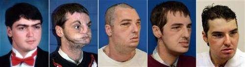 Face transplant patient celebrates life in public
