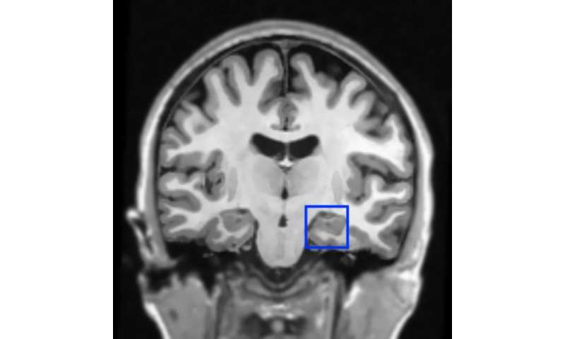 First evidence that fear memories can be reduced during sleep